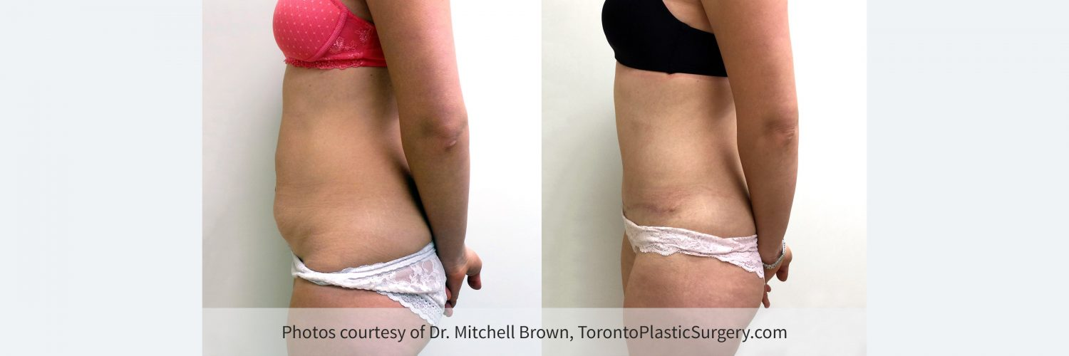 Case 7: Tummy Tuck, Before and 6 Months After