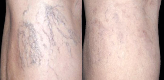 """""""Spider"""" veins treated with laser, Before and After"""